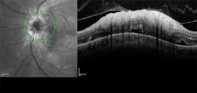 La OCT muestra afectación de la mitad de la capa de fibras ganglionares en región temporal superior e inferior.