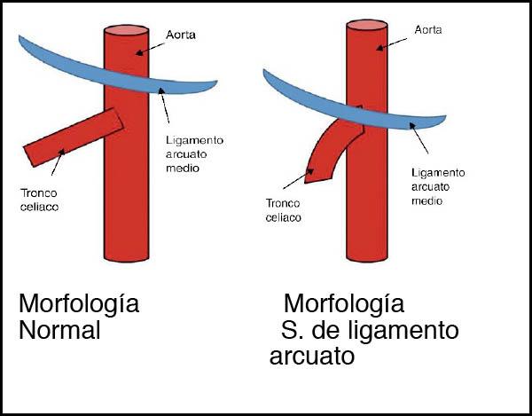 Dolor Abdominal y Síndrome del Ligamento Arcuato